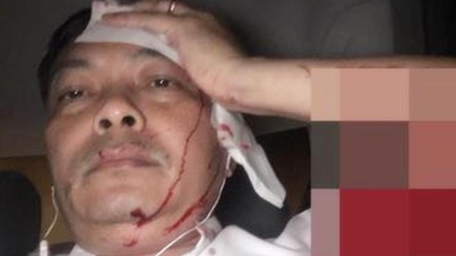 Ông Nguyễn Văn Đông ôm đầu tóe máu do bị tấn công.