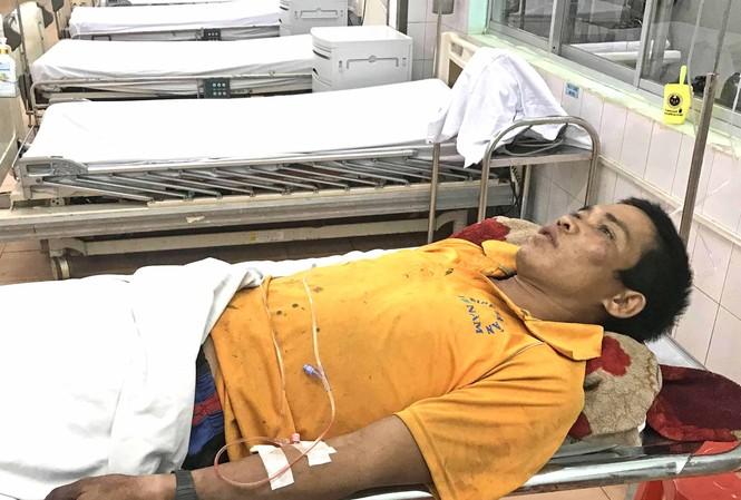 Anh Be đang được điều trị ở bênh viện Đa khoa tỉnh Gia Lai