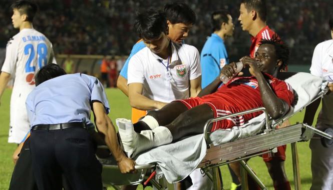 Abbas bị chấn thương nặng ở trận chung kết Cúp QG 2015. Ảnh: HL