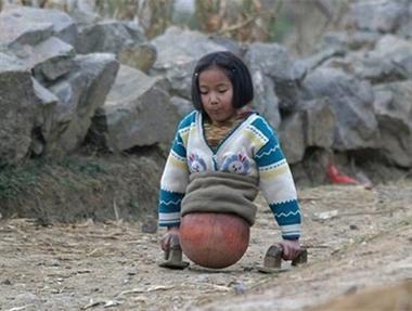 Rơi lệ nhìn cô gái không chân đi bằng bóng rổ
