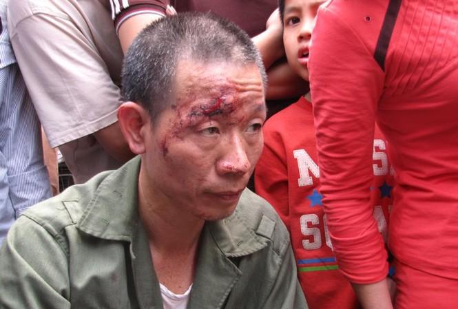 Bộ Công an chỉ đạo làm rõ 'dân tố công an đánh người'