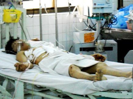 Nghi can Đ. đang được điều trị tại bệnh viện