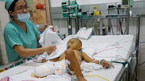 Bệnh nhi đang được điều trị tại Khoa Hồi sức, Bệnh viện Nhi Đồng 2 TP HCM. Ảnh: Thi Ngoan.