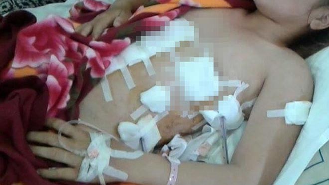 Na khi đang được cấp cứu tại Bệnh viện (ảnh nhân vật cung cấp)
