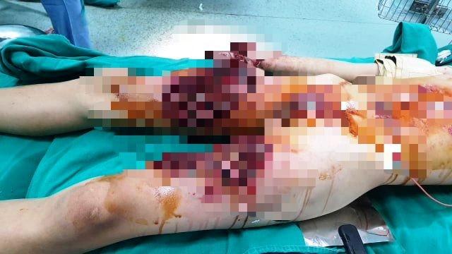 Học sinh bị nát bàn tay do làm pháo