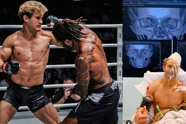 Sage Northcutt phải nhập viện vì bị đối thủ đấm rạn xương mặt.
