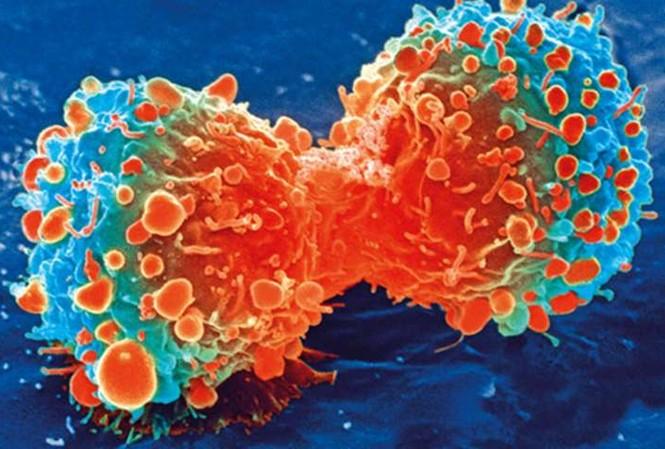 Thuốc ức chế sự lây lan của tế bào ung thư có tác dụng chữa COVID-19