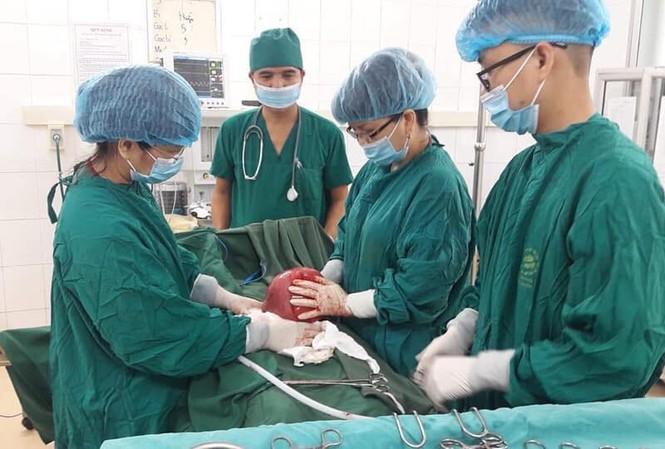 Các bác sỹ thực hiện ca phẫu thuật u xơ tử cung cho bệnh nhân H.