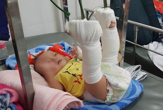 Bé trai bị bố bạo hành chấn thương nặng.