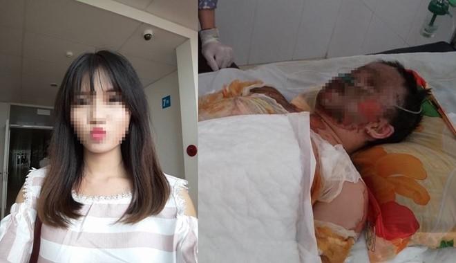 Sau vụ tai nạn Hằng bị bỏng toàn thân, khuôn mặt biến dạng và hai tay cháy khô