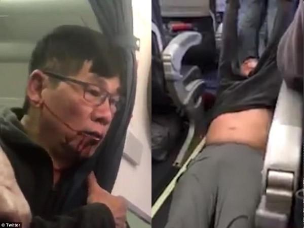 Cảnh ông David Dao bị kéo khỏi máy bay trong đoạn video gây xôn xao dư luận.