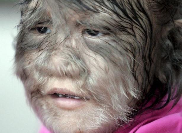 """Một em nhỏ mắc hội chứng """"người sói"""". Ảnh minh hoạ: EPA"""