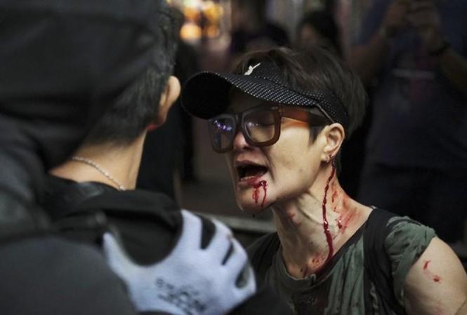 Một người phụ nữ bị thương ở mặt sau khi bị những phần tử bạo loạn tấn công ở Hong Kong. Ảnh: Tân Hoa Xã