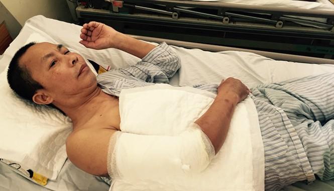 Cánh tay phải của bệnh nhân Hoàng Văn Nhân đã bị cắt đi phần da hoại tử.