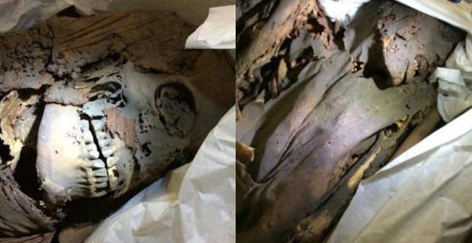 Nguyên nhân cái chết của xác ướp Ai Cập cổ đại có thể là do nhiễm trùng và ung thư. Ảnh: Macquarie University.