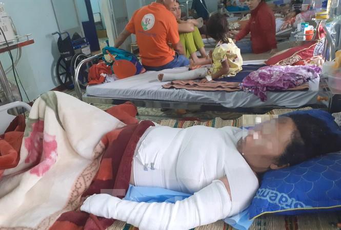 Chị T. bị phỏng nặng đang được điều trị tại bệnh viện