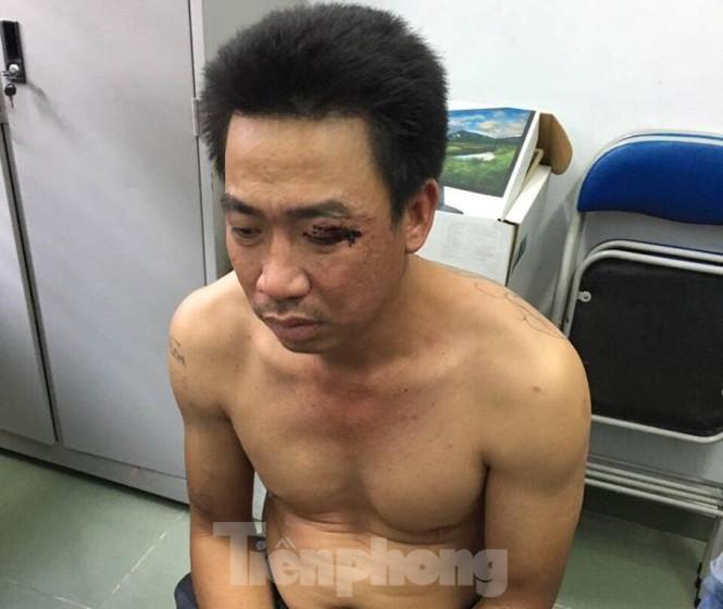 Đã bắt được tên trộm chó lái ô tô tông vào tổ tuần tra - ảnh 1