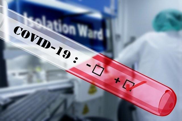 Nghiên cứu tìm biến thể của virus SARS-CoV-2 tại Việt Nam