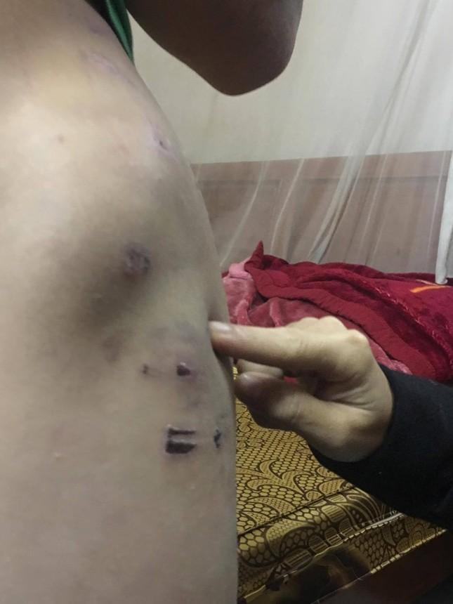 Những vết thương trên người bé trai tố bị bố đánh bằng dây điện ảnh 8