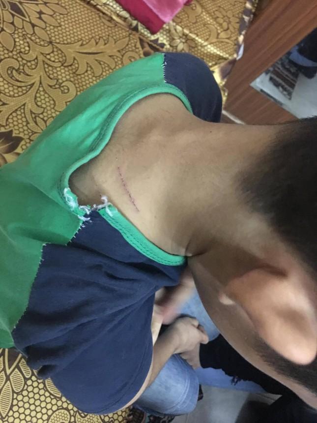 Những vết thương trên người bé trai tố bị bố đánh bằng dây điện ảnh 1