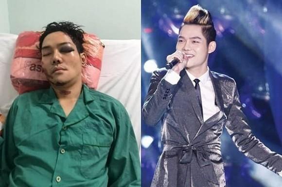 Showbiz 24/5: Hồ Ngọc Hà mang song thai, Hồng Ngọc kể về chuyện bị bỏng nước sôi ảnh 12