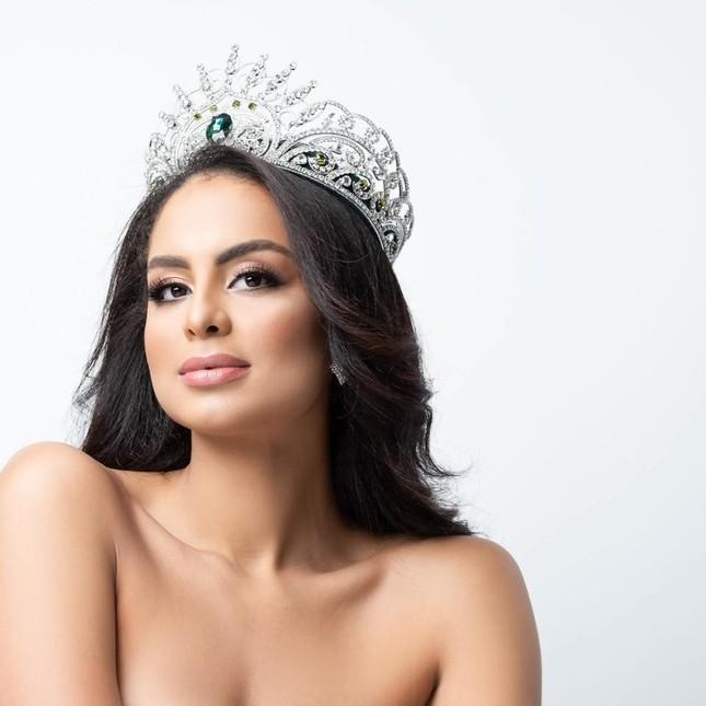 Ảnh bán nude nóng 'bỏng rẫy' khác lạ của Tân Hoa hậu Trái đất ảnh 1
