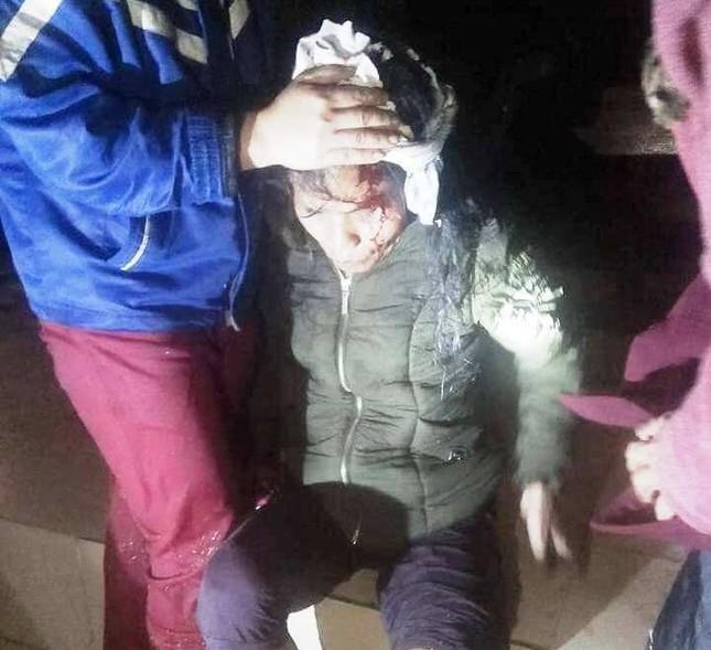 Lốc xoáy tàn phá miền núi Nghệ An, cụ bà bị nhà sập đè gãy chân ảnh 1