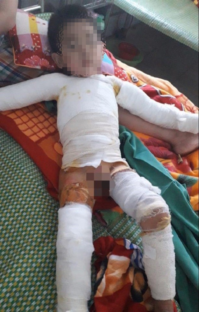 Ghép da 3 lần, bệnh nhi 5 tuổi bị bỏng nặng toàn thân được cứu sống ảnh 1