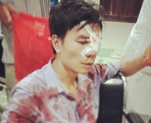 Cán bộ địa chính bị tố dùng xẻng đánh người nhập viện sau va chạm giao thông ảnh 1
