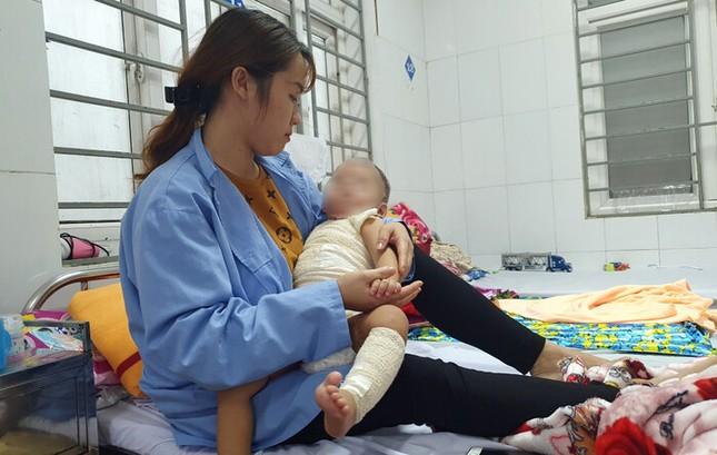 Đắp thuốc chữa bỏng của thầy lang, bé trai 13 tháng tuổi bị hoại tử da ảnh 1
