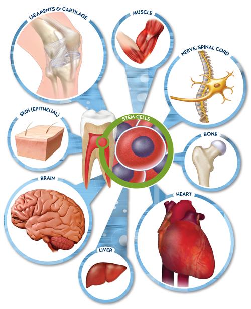 Dùng tế bào gốc có thể chữa được những bệnh gì? ảnh 1