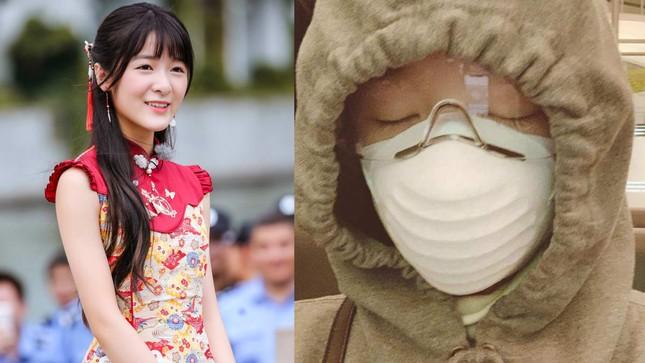 Người đẹp phim Châu Tinh Trì được lắp màn hình theo dõi khi cách ly ảnh 2