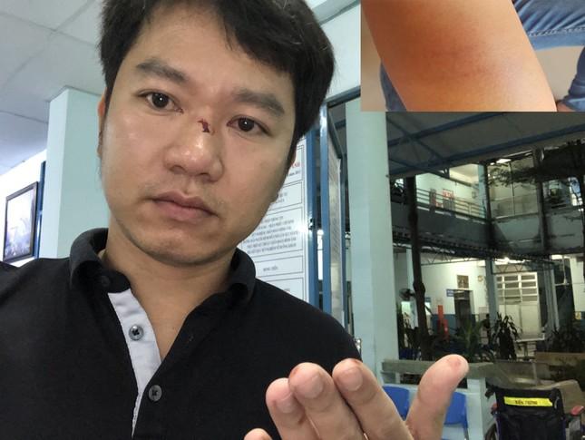 Người dân 'tố' bị người lạ hành hung khi làm việc với CSGT Hàng Xanh ảnh 2