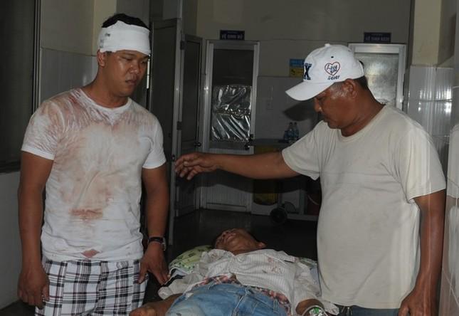 Gia đình anh em đánh nhau tranh lối đi, 7 người bị thương ảnh 2