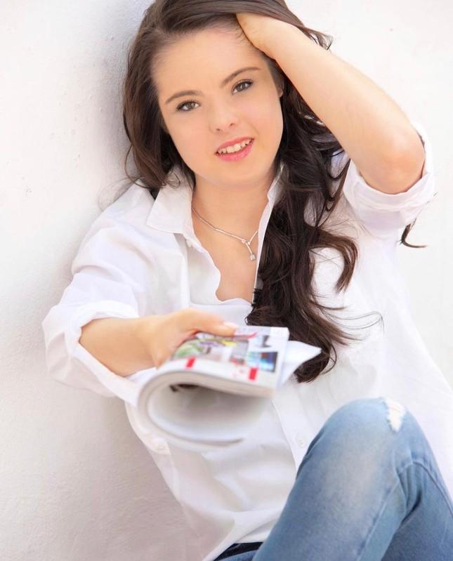 Nghị lực trở thành người mẫu chuyên nghiệp của cô gái mắc hội chứng Down ảnh 4