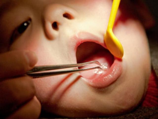 Ăn cháo lươn, bé gái 7 tháng tuổi suýt chết ảnh 1