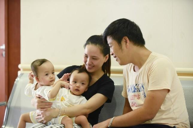 Phẫu thuật tách cặp song sinh 'dùng chung một tã': Cha mẹ khóc nức nở ảnh 1