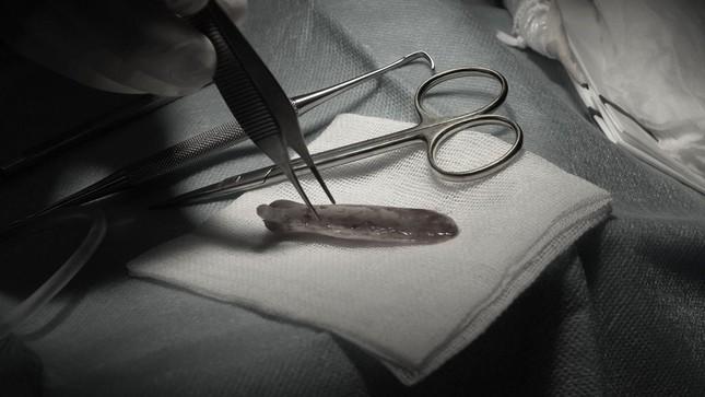 Tin 'bác sĩ Sài Gòn', người phụ nữ đứt lìa trụ mũi, đau như bị ngàn con ong chích ảnh 2