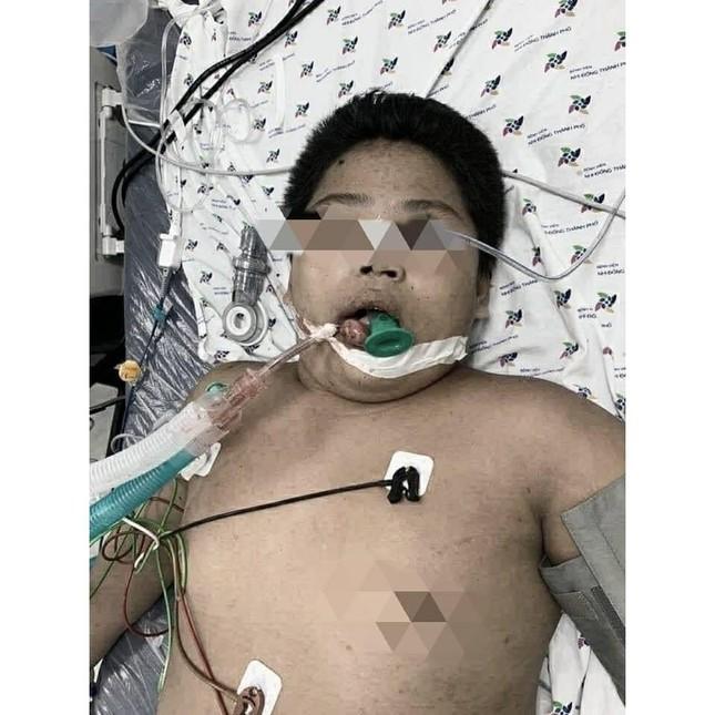 Nam sinh 14 tuổi phù phổi, hôn mê do bị bạn nhấn nước khi đi bơi ảnh 2