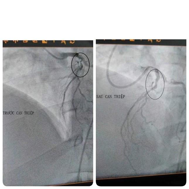Nam thanh niên 30 tuổi suýt chết vì nhồi máu cơ tim ảnh 1