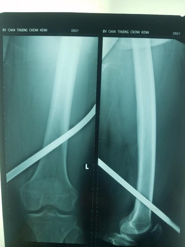 Trượt té tại công trường, nam công nhân bị thanh sắt đâm xuyên đùi ảnh 1