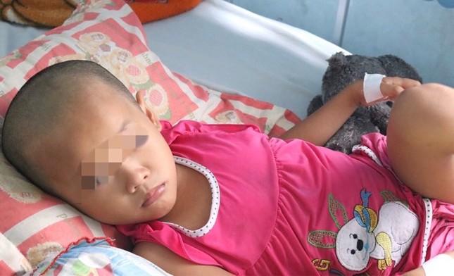 Bé gái suýt chết vì chấn thương sọ não do cha mẹ chủ quan ảnh 2