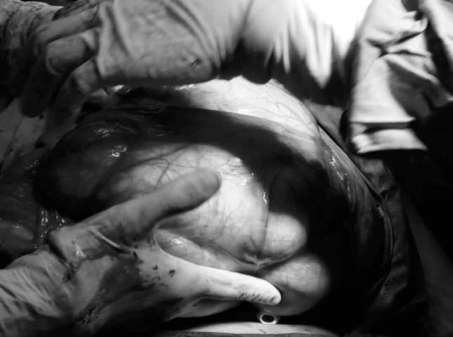 Người phụ nữ mang khối u hơn 6kg trong bụng nhưng không hay biết ảnh 1