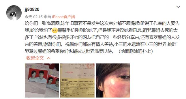 """Bằng chứng """"bạo lực gia đình"""" của Hoàng Cảnh Du, """"Thanh xuân có bạn 2"""" lộ ảnh tốt nghiệp ảnh 1"""