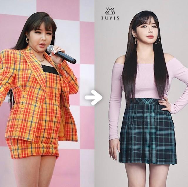 """Park Bom xuất hiện hậu giảm 11 kg, """"visual đỉnh cao"""" trực tiếp đối đầu với IU và Baekhyun ảnh 4"""