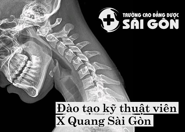Đào tạo X-Quang siêu âm ngoài giờ hành chính ảnh 1