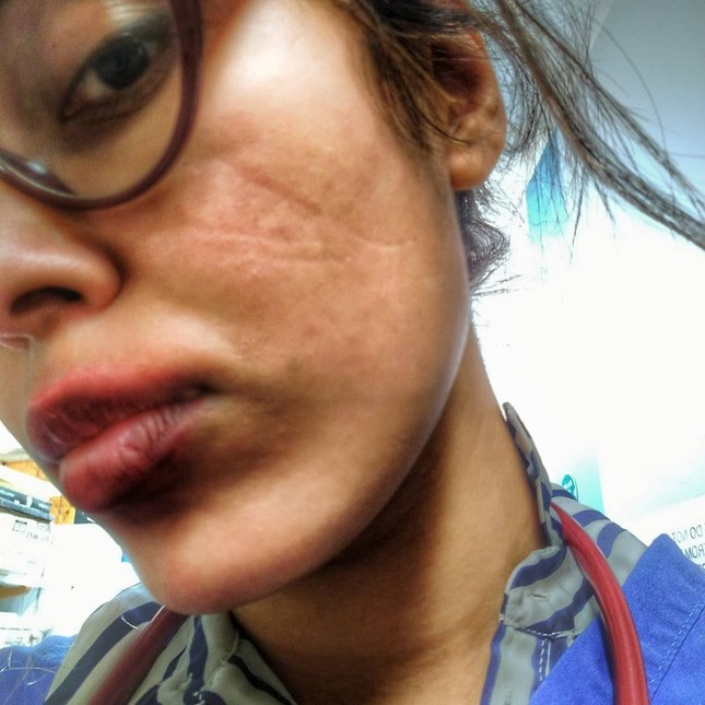 Hoa hậu Anh bị tổn thương mặt vì đeo khẩu trang quá nhiều khi làm bác sĩ chống COVID-19 ảnh 1