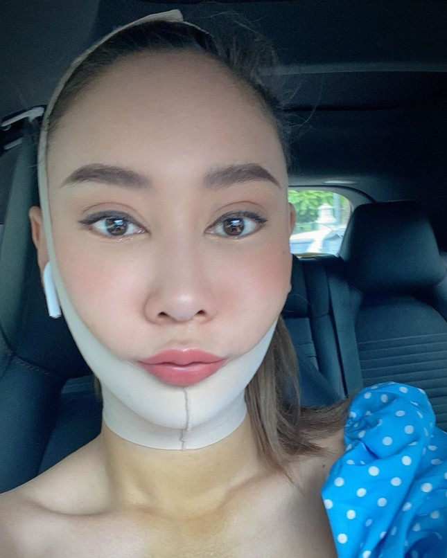 Nữ DJ nghiện thẩm mỹ gây sốc khi lần thứ 2 được chỉ định thành Hoa hậu Trái đất Thái Lan ảnh 9