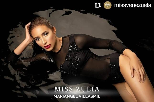 Mỹ nhân 24 tuổi sở hữu đôi chân dài 'cực phẩm lên ngôi Hoa hậu Venezuela 2020 ảnh 7
