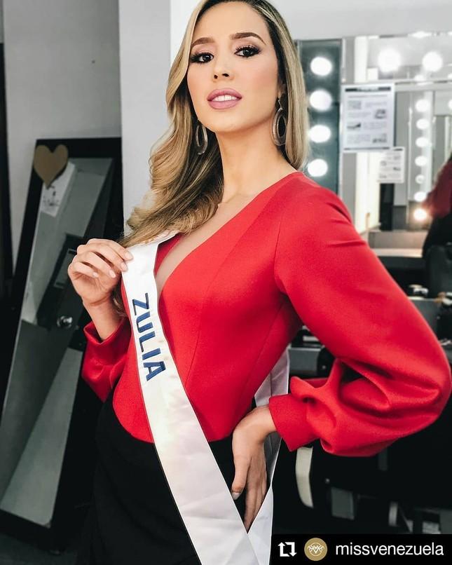 Mỹ nhân 24 tuổi sở hữu đôi chân dài 'cực phẩm lên ngôi Hoa hậu Venezuela 2020 ảnh 9